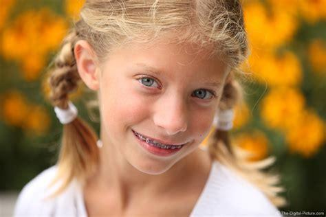 braces  braids picture