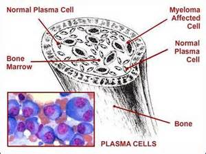 Myeloma - MYeloma - Alistair's journey through cancer  Multiple Myeloma Lymphatic System
