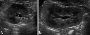 Appearance Of Normal Kidneys On Postnatal Ultrasound  A
