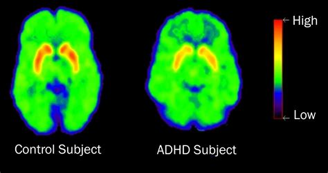 prescription stimulants affect people  adhd differently