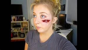Exposed Cheekbone Injury