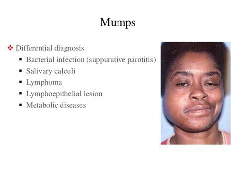 Mumps Parotid Gland Swelling