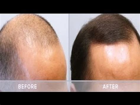 Mens Hair Loss Treatment - Minoxidil ( Arganrain ) Before
