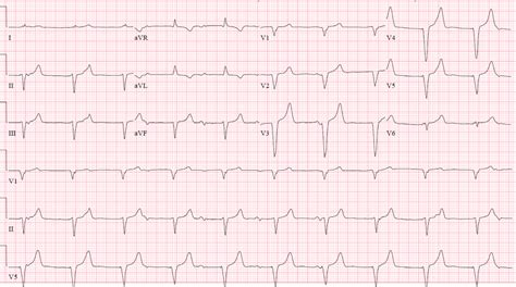 75 Year Old Man With A History Of Single Chamber Pacemaker