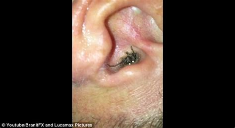 checking  ear canal   painful blockage  man