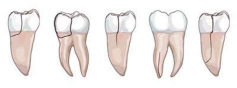 dent definitive qui bouge 28 images une id 233 e pour s arracher une dent le baby doctissimo