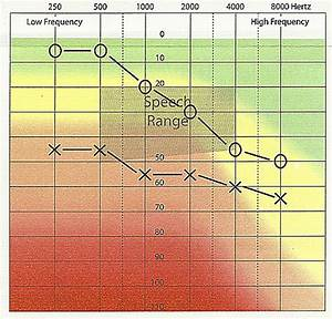The Audiogram A Guide To Your Hearing