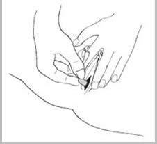 Telat Menstruasi 12 Hari Obat Aborsi Cytotec Manjur Untuk Aborsi Yang Aman Dan Efektif