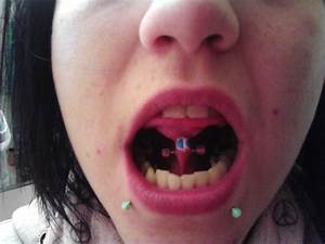 Lower Lip Piercings With Green Studs And Tongue Frenulum ...