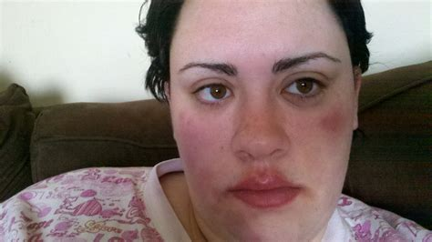 Image Gallery Hives On Face