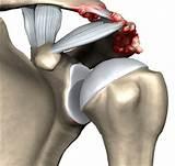Как отличить боль в мышцах от боли в суставе
