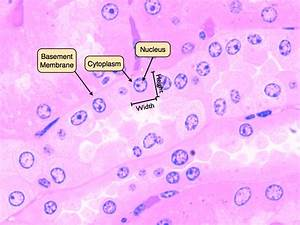 Squamous Epithelial Cells Under Microscope Labeled