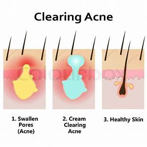 Illustration Of Clearing Skin From Acne  Applying Cream