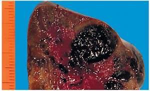 Чем лечить жировой гепатоз печени лекарствами
