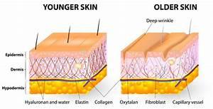 Radiofrequency Skin Tightening