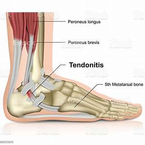 Peroneal Tendonitis Ankle Joint 3d Medical Vector