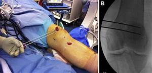 Medial Patellofemoral Ligament Reconstruction With A