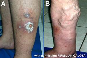 Pathogenesis Of The Venous Ulcer  U2013 Josef Pflug Vascular