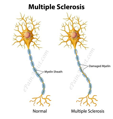 Multiple Sclerosis Or Disseminated Sclerosistypesrisk. Sales Tracking Templates Micro Business Loans. Executive Leadership Programs For Women. Brief Intervention Alcohol Extreme Body Odor. Two Factor Authentication Gmail. What Is Medical Assisting Regal Pest Control. Masters Physical Education Abc Family Directv. Garage Door Repair Auburn Ca. Masters Of Fine Arts Online Nba Credit Card
