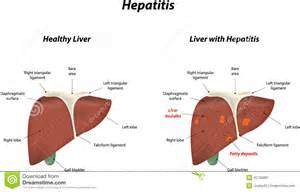 Hepatitis Stock Vector - Image: 45795881 Hepatitis