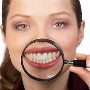 Лечение папиллом в полости рта