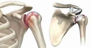 Методы лечения деформирующего артроза плечевого сустава