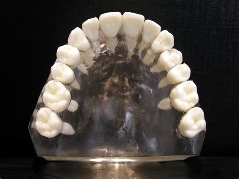 Difference Between Maxillary And Mandibular Molars