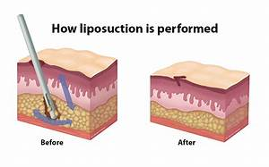 Liposuction Is Commonly Performed On