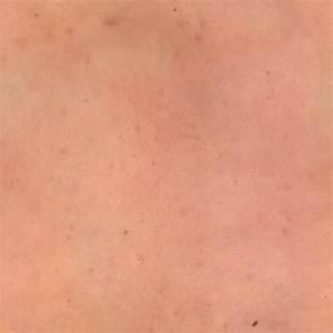 Female Human Skin Texture