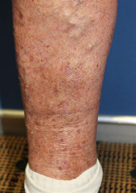 skin cancer leg  local flap repair