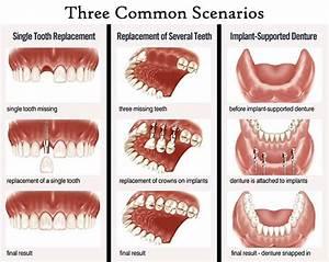 Dental Implants - Comfort Dental   Lafayette Indiana