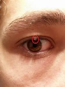Traitement vitiligo : le traitement du vitiligo