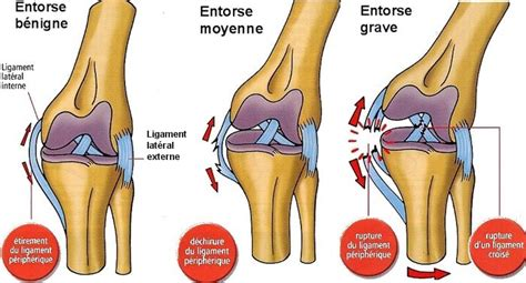 douleur al interieur du genou entorse d 233 finition et prise en charge physio