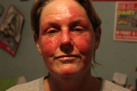 My Journey To Wellness Is It Rosacea Steroid Drug