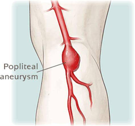 popliteal blood clot