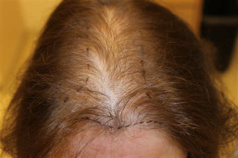 hair loss  women syracuse ny syracuse female hair loss