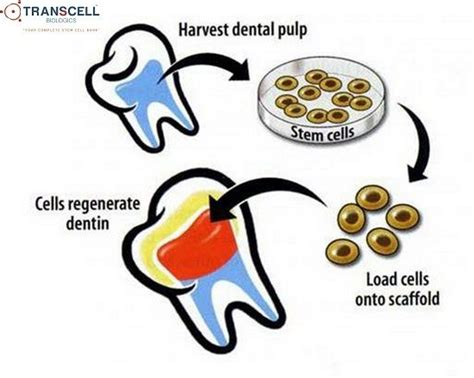 teethdental pulp   rich source  mesenchymal stem
