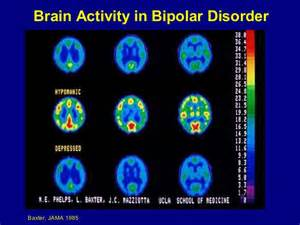 Bipolar Disorder Brain Activity