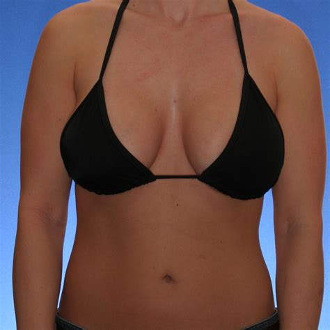 Orange County Breast Lift Surgeon Provides Patients With