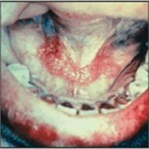 HPV Oral Cancer | Intelligent Dental