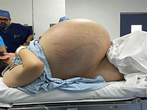 Tommy Freckles Pounds Bbw Baby #Woman #With #World'S #Largest #Cyst #Has #Five #Stone #Tumour