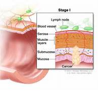 Stage I colon cancer  ...Colon Cancer Stages And Treatment