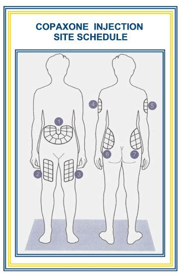Printable Insulin Injection Sites Diagrams Abdomen