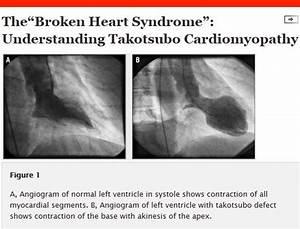 Heart and Broke... Broken Heart Syndrome