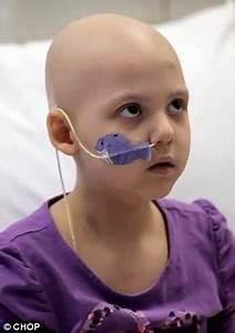Girl, 7, beats leukaemia with revolutionary treatment using HIV virus ...  Acne Acute lymphocytic leukemia