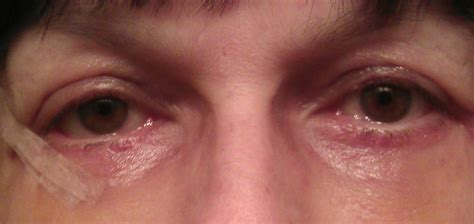 red eye painful sensitivity to light red burning eyes sensitive to light decoratingspecial com