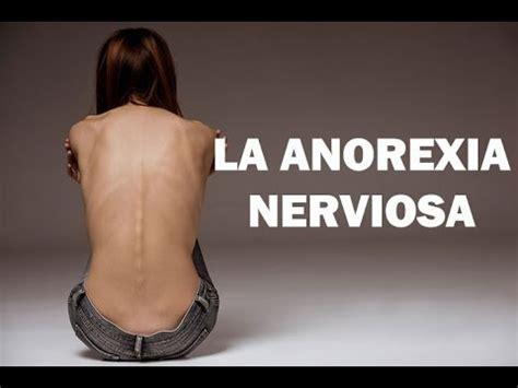 anorexia nerviosa sintomas  tratamiento  sinapsis emp