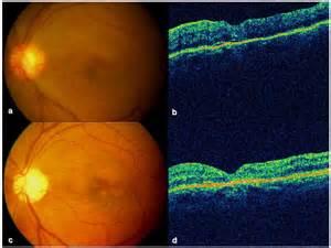 Macular Cyst Hole