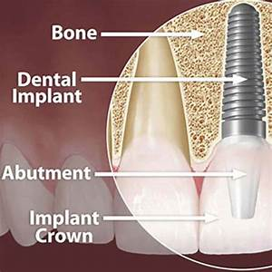 Dental Implants  A Complete Guide To Costs  U0026 Procedures