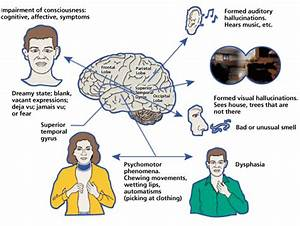 Epilepsy, Partial, Motor; Focal Motor Epilepsy; Motor ...